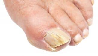 ногтевой грибок на ногах лечение препараты