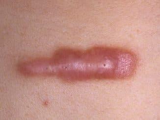 коллоидные рубцы лечение