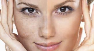 лучшие крема от пигментации на лице
