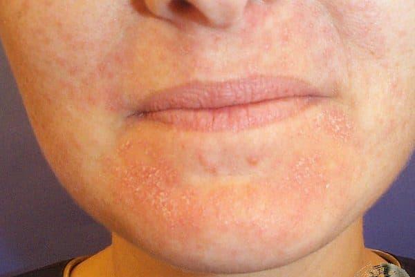 acne vulgaris dermnet nz - 600×401